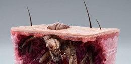Tak wygląda rak skóry. Szokujące zdjęcia