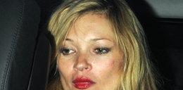 Heroina nie służy celebrytom. FOTO