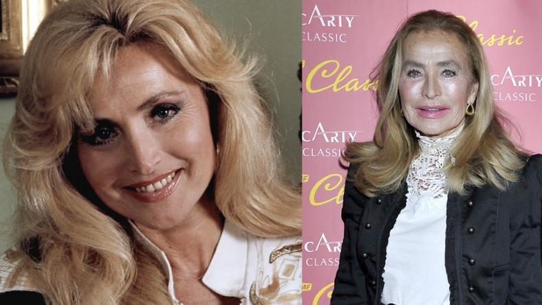Czy zmiany na jej twarzy to tylko wynik upływu czasu...? W X br. gwiazda telewizji skończy 73 lata.