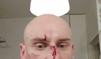 Były fryzjer Andrzeja Dudy pobity na ulicy!