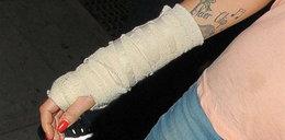Amy Winehouse ma kontuzję ręki