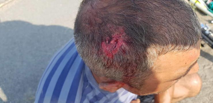 Povređeni biciklista