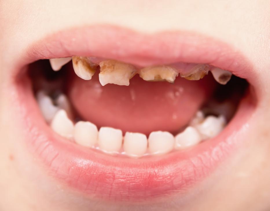 Rossz fogak? Irány a kardiológus! | Well&fit