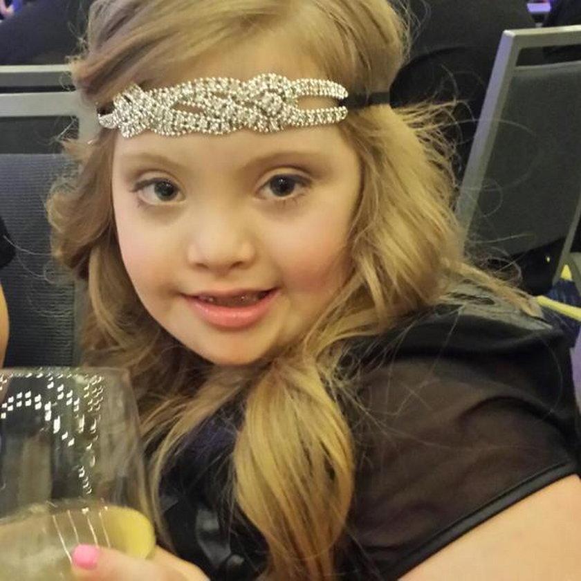 9-latka z zespołem Downa twarzą znanej marki