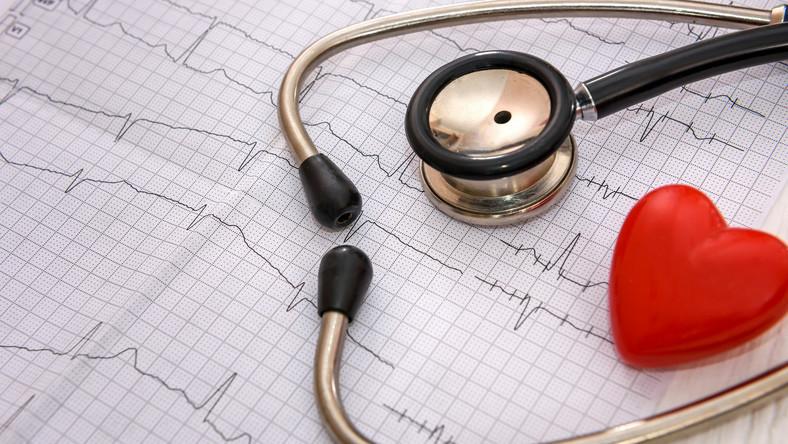 EKG, badanie, serce
