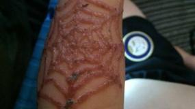 Silny alergen w tatuażach z henny wypalił blizny na rękach