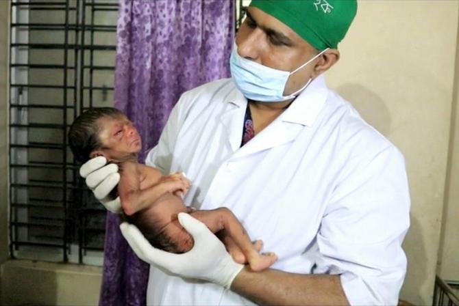 Dečačič je rođen sa teškim poremećajem