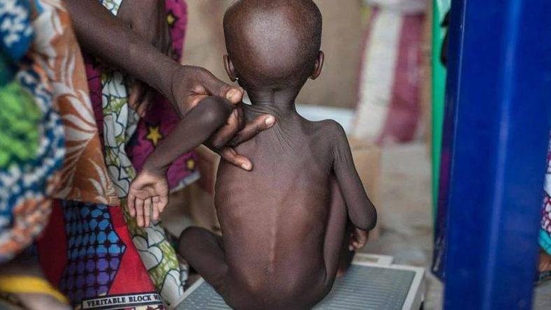 Children malnourished in the North