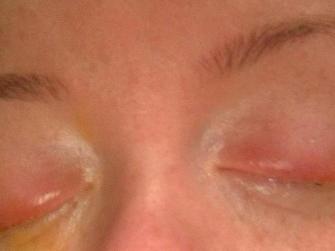 Stavila je šminku i gotovo oslepela. Ovakva alergija može svakoj ženi da se desi!
