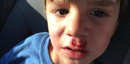 Najpopularniejsza zabawka świata dotkliwie poraniła chłopca