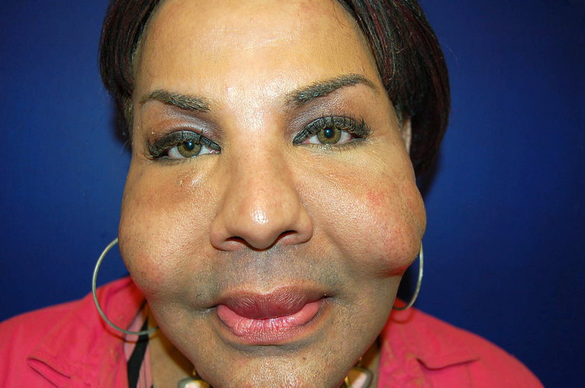 Wstrzykiwała pacjentkom cement w pośladki