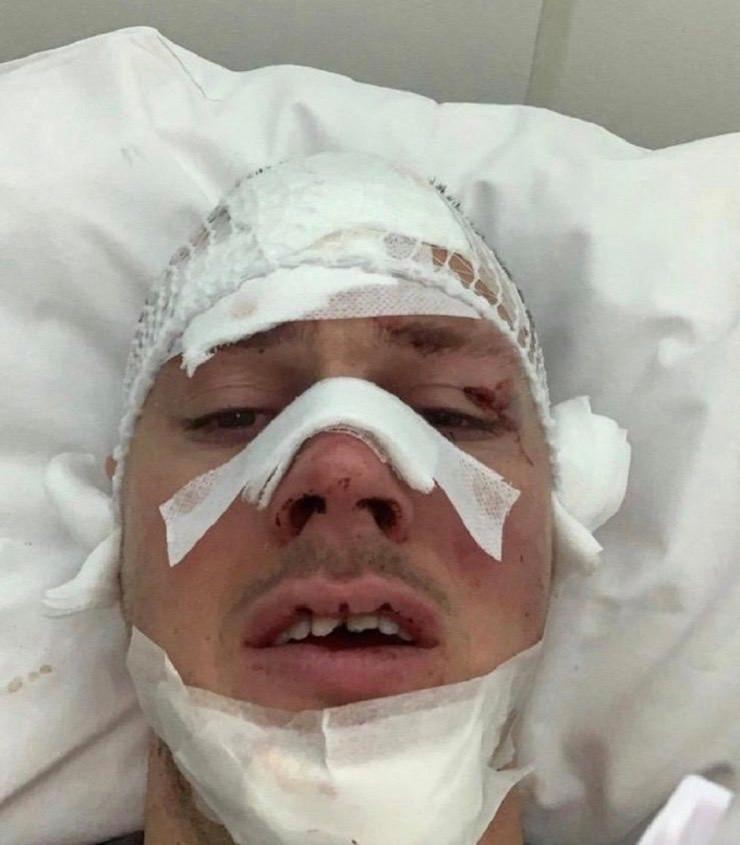 Povrede Nikole Ninkovića