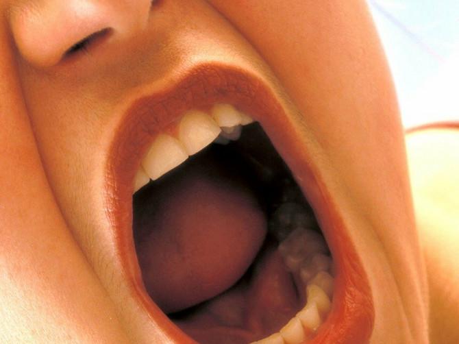 Često vam se u ustima pojavljuju afte? Evo kako najlakše da ih se rešite!