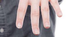 Półkola na paznokciach Co mówią o twoim zdrowiu?