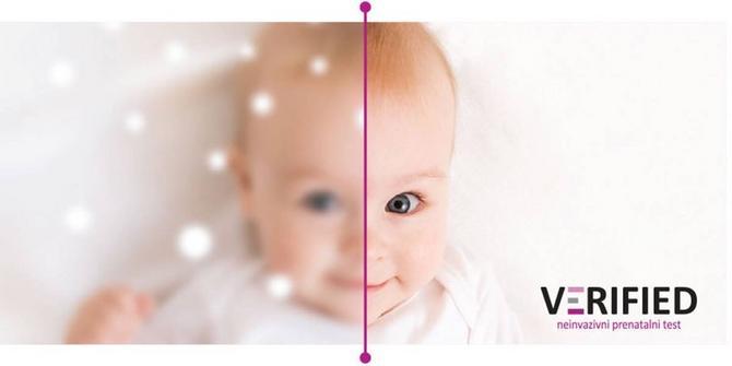 Buduće mame već u desetoj nedelji trudnoće mogu da saznaju važne stvari vezane za bebu