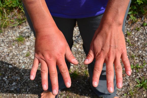 Neko prođe bez burne reakcije, drugi završe u bolnci zbog opasne alergije