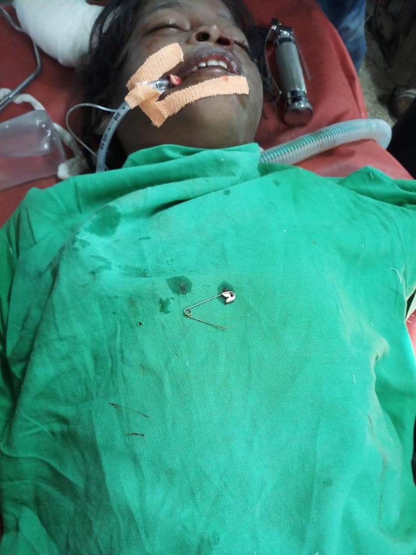 Indie: Lekarze byli w szoku. Agrafka utknęła 10-latce w nosie