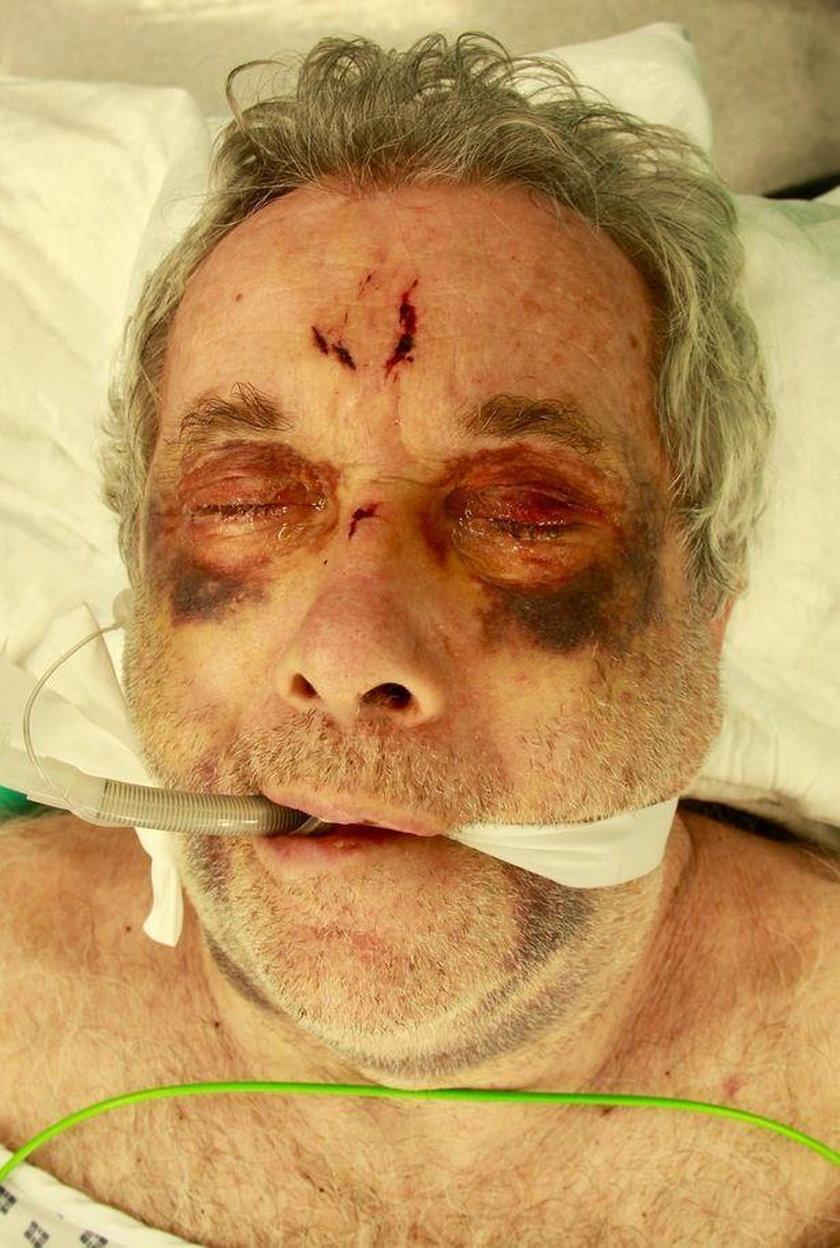 Znany dziennikarz Martin Bell przeszedł poważną operację po wypadku na lotnisku