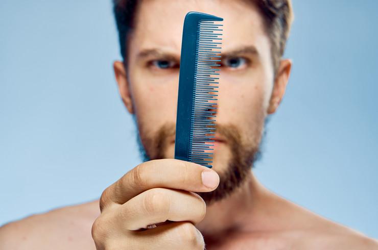 shutterstock_760552291 češalj muškarac opadanje kose