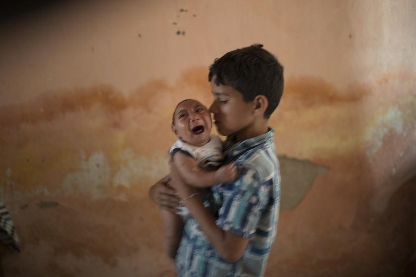 Pierwsze dziecko z wirusem Zika w USA