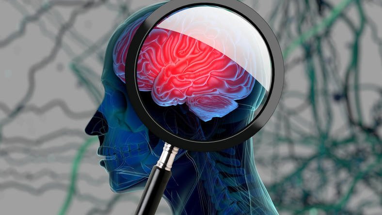 Trzeba czytać książki. Badania dowiodły, że miłośnicy książek mają lepszą pamięć. Dodatkowo dzięki lekturze czujemy się zrelaksowani, uspokojeni, co również korzystnie wpływa na mózg.