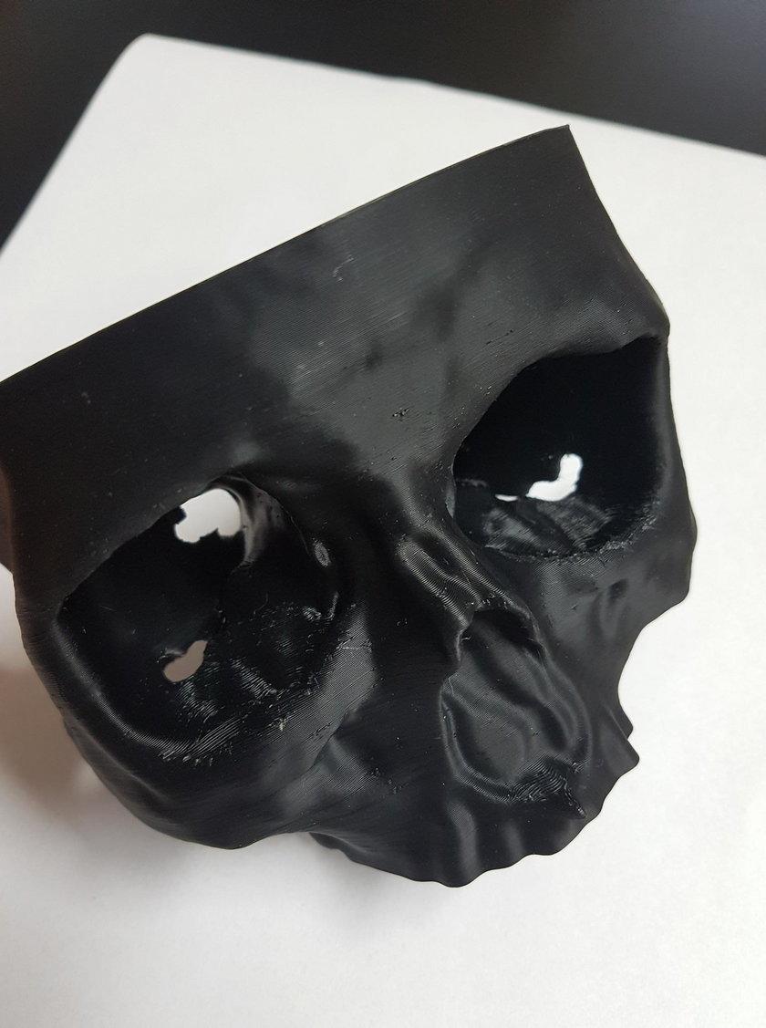Mam czaszkę dzięki drukarce 3D