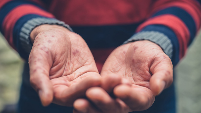 Puste dłonie