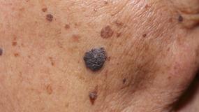 Kobieta, która cierpi na raka skóry, publikuje w sieci wstrząsające zdjęcie twarzy