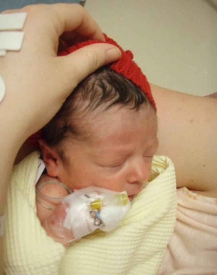 Dziewczynka urodziła się bez kropli krwi