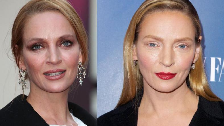 """Aktorka pojawiła się na nowojorskiej premierze swojej mini serii """"The Slap on Monday"""". Eksperci wypowiadający się na łamach """"Daily Mail"""" stwierdzili, że aktorka zdecydowanie przesadziła z chirurgicznym poprawianiem urody."""
