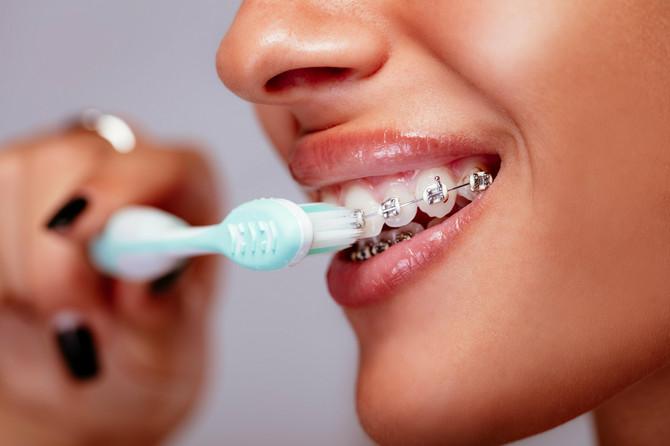 Fiksnu protezu treba redovno prati četkicom i pastom za zube. Dobro je imati i specijalnu četkicu za odstranjivanje zaostale hrane između bravica