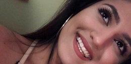 Przerażający atak! Oblał kwasem 21-latkę i jej kuzyna