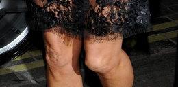 To kolana babci? Nie supermodelki!