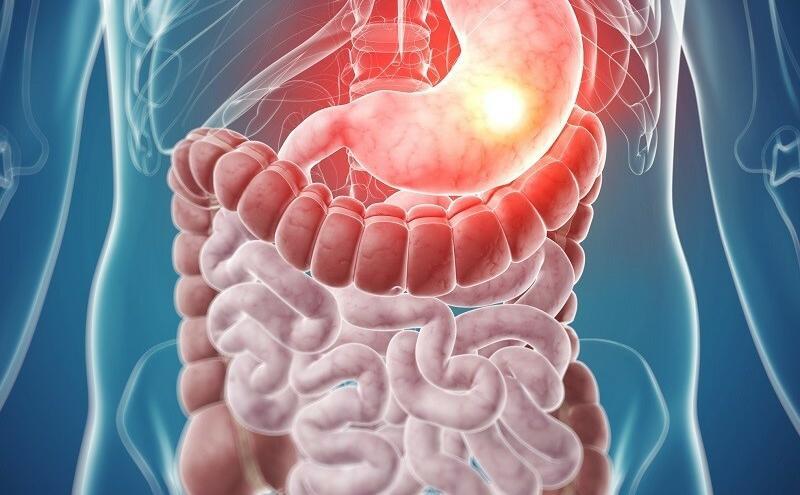 Lehet- e gyomor a prosztatitisből