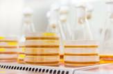 laboratorija, petrijeve posude