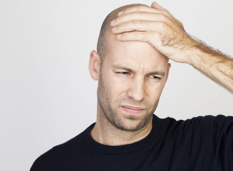 dlaczego włosy po przeszczepie nie wypadają