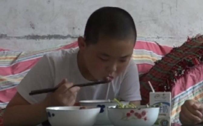Dečak koji jede pet puta dnevno