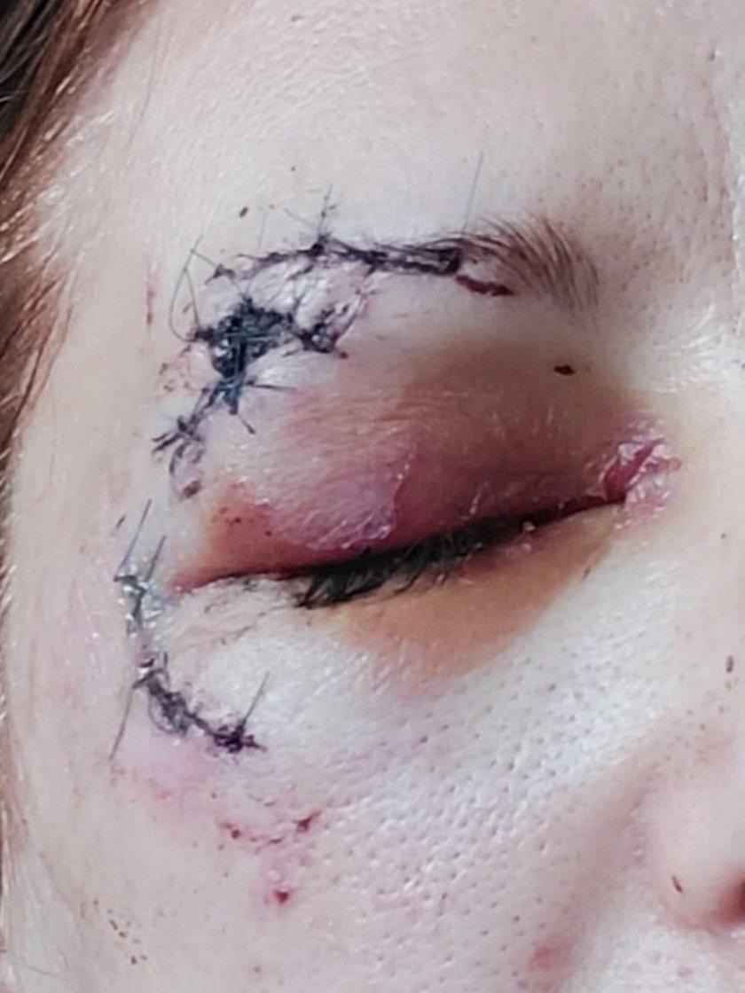 Para rowerzystów zaatakowana przez psy