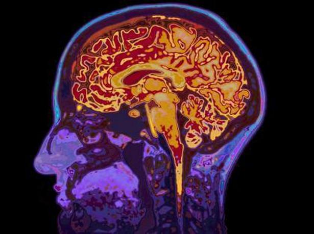 SARS-CoV-2 może atakować mózg. To badanie pokazuje jak