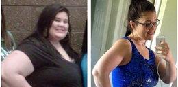 Ważyła prawie 200 kg. Lekarz nie chciał jej pomóc!