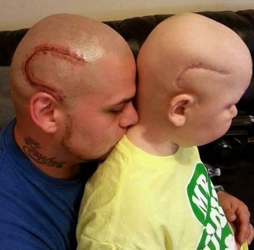 Piękny gest ojca. Zrobił to dla chorego synka
