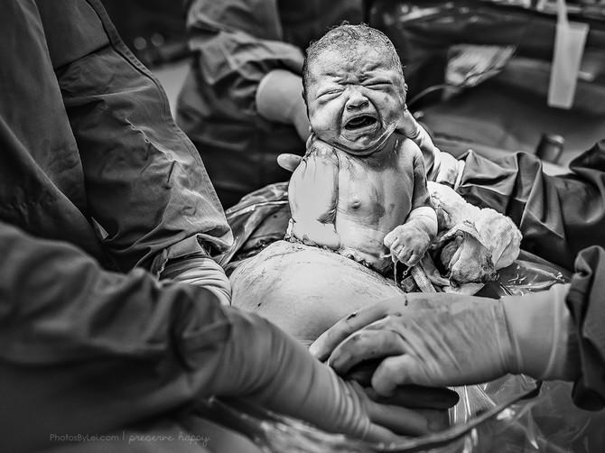 Žene koje su se OVAKO porodile zovu NEMAJKAMA: Ovim slikama mogu samo da poručim - i ovo je porođaj, i ovo je prelepo, i ovo je ČUDO