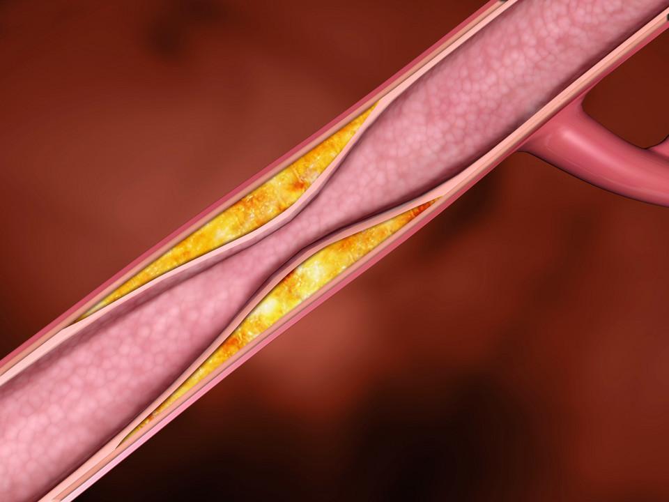 Kiwi obniża poziom cholesterolu