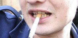 Brzydkie zęby gwiazd