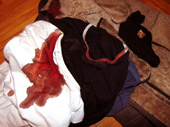 Bloody clothes Slavoljub Pavlovic received him at the time of attack