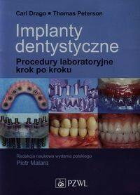 Wydawnictwo Lekarskie PZWL Implanty dentystyczne - Carl Drago, Thomas Peterson