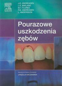 Andreasen J.O., Bakland L.K., Flores M.T. Pourazowe uszkodzenia zębów