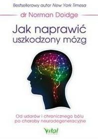 Vital Jak naprawić uszkodzony mózg - Norman Doidge