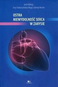Ostra niewydolność serca w zarysie - Via Medica