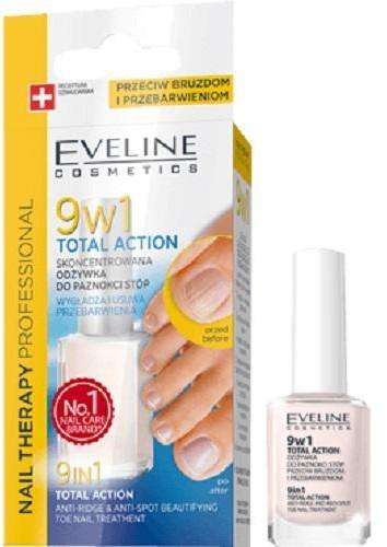 Eveline Nail Therapy Total Action 9w1 odżywka do paznokci stóp